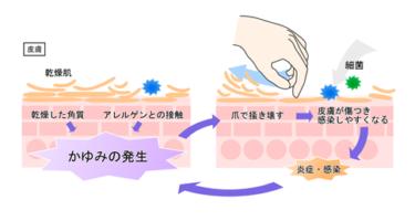 【冬の対策】頭皮の乾燥・かゆみ・どこにも載ってないお手入れ方法